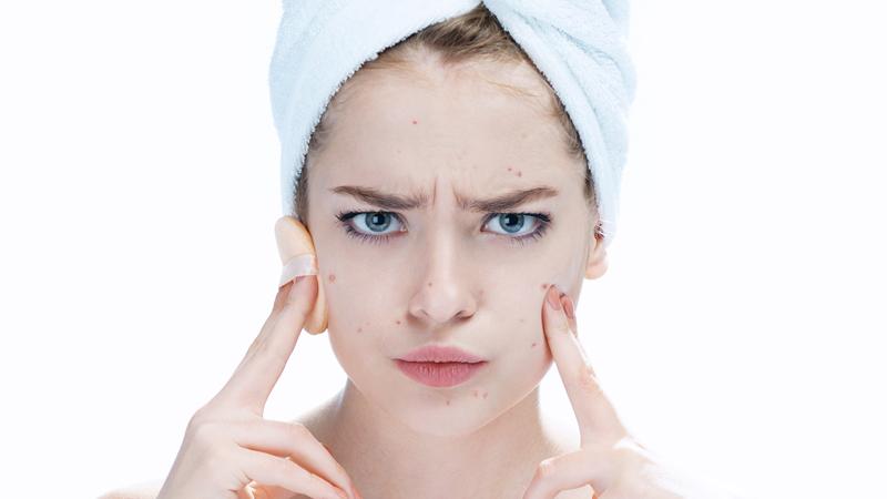 Tipuri de leziuni acneice și cum să luptăm cu ele?